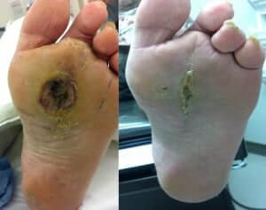 Healed Diabetic Foot Ulcer/Wound after surgery in Newport Beach, CA