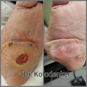 Diabetic Foot Ulcer Orange County, Mission Viejo, Aliso Viejo, Lake Forest, Laguna Hills, Laguna Beach, Irvine, Newport Beach, Tustin, Orange, Anaheim, Fullerton, Santa Ana, Laguna Niguel, Dana Point.