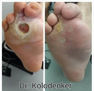 Diabetic Foot Wound/Ulcer healed Orange County Irvine Prevent amputation Orange County, Mission Viejo, Aliso Viejo, Lake Forest, Laguna Hills, Laguna Beach, Irvine, Newport Beach, Tustin, Orange, Anaheim, Fullerton, Santa Ana, Laguna Niguel, Dana Point.