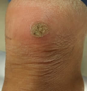 Plantar Wart on back of heel HB