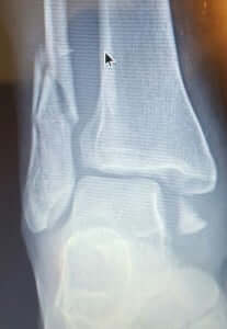 Ankle Fracture Surgeon Orange County Irvine HB Orange