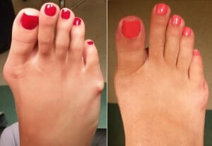 Bunion surgery orange county Bunion Picture Pre Op and Post Op 3 months after surgery