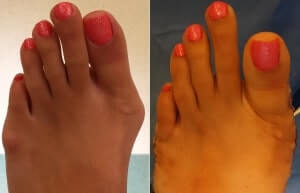 Bunion Pictures Before and After Surgery Orange County, bunion surgery orange county