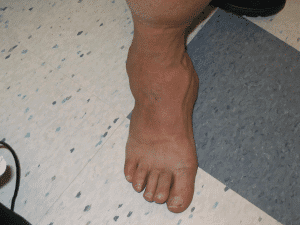 Charcot Foot Doctor in Orange Couty California Irvine