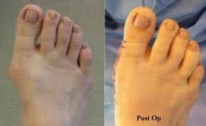 Bunion specialist Newport Beach - Pain free bunion surgery Mission Viejo