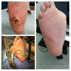Diabetes Charcot Foot Ulcer Surgery  Healed and Closed Orange County