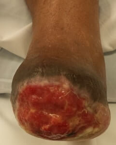 Skin graft surgeon foot ankle Orange County, Mission Viejo, Aliso Viejo, Lake Forest, Laguna Hills, Laguna Beach, Irvine, Newport Beach, Tustin, Orange, Anaheim, Fullerton, Santa Ana, Laguna Niguel, Dana Point.