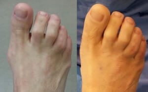 Minimally Invasive Bunion Surgery Pictures Before and After Operation Orange County Bunion Surgeon Mission Viejo