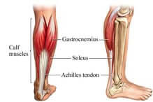 achilles tendon rupture orange county surgery