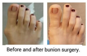 bunion surgery before and after picture - bunion expert in orange county - irvine - newport Beach - mission viejo