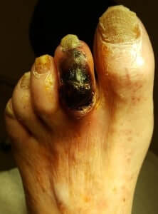 Gangrene of the 2nd toe on the foot Anaheim, Orange, Garden Grove, Santa Ana
