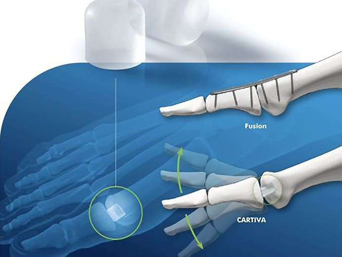 Cartiva Joint Replacement Orange County Irvine HB Orange